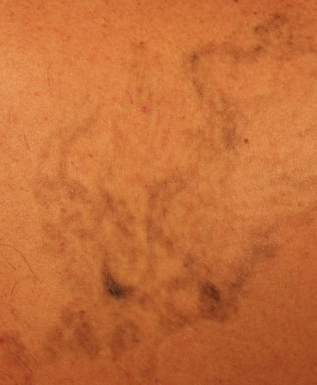Laser Treatment For Stretch Marks Cost Yacht
