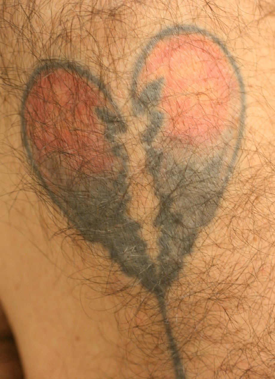tattoo removal london