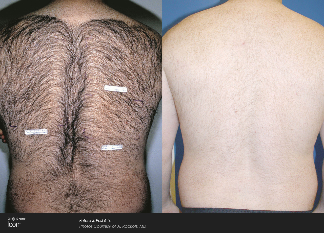 Male Laser Hair Removal Pulse Light Clinic London