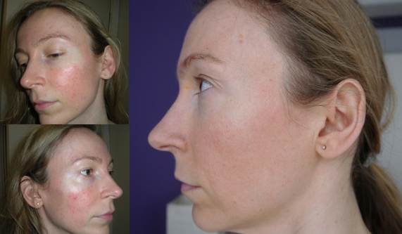 Before and after IPL rosacea treatments