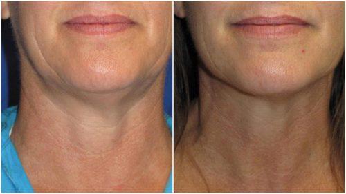 After Velashape Chin Cellulite Reduction Treatment