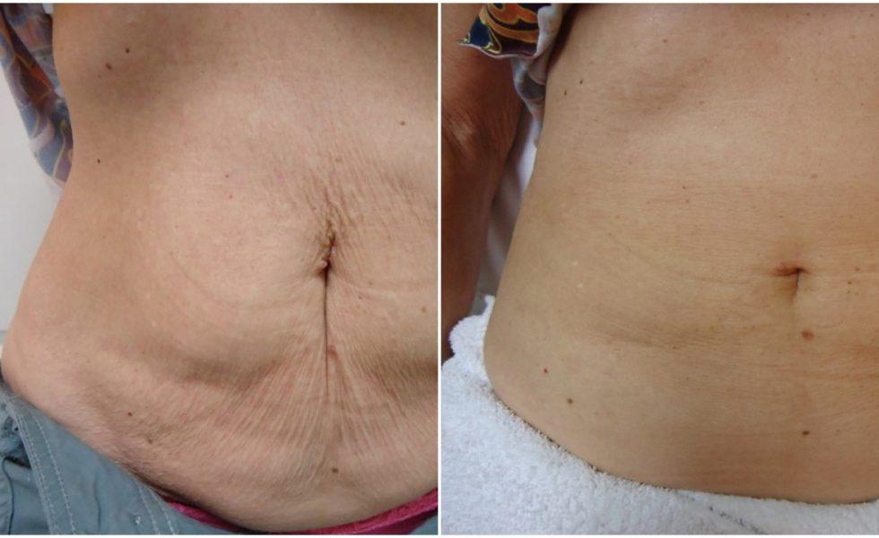 After Velashape Cellulite Reduction Treatment