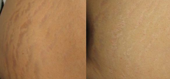 Icon-A-Bright-stretchmark-side-post3Tx (2)