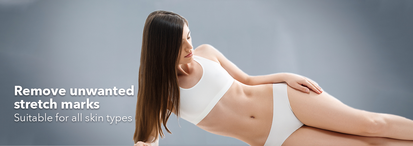 Stretch Mark Removal Pulse Light Clinic London