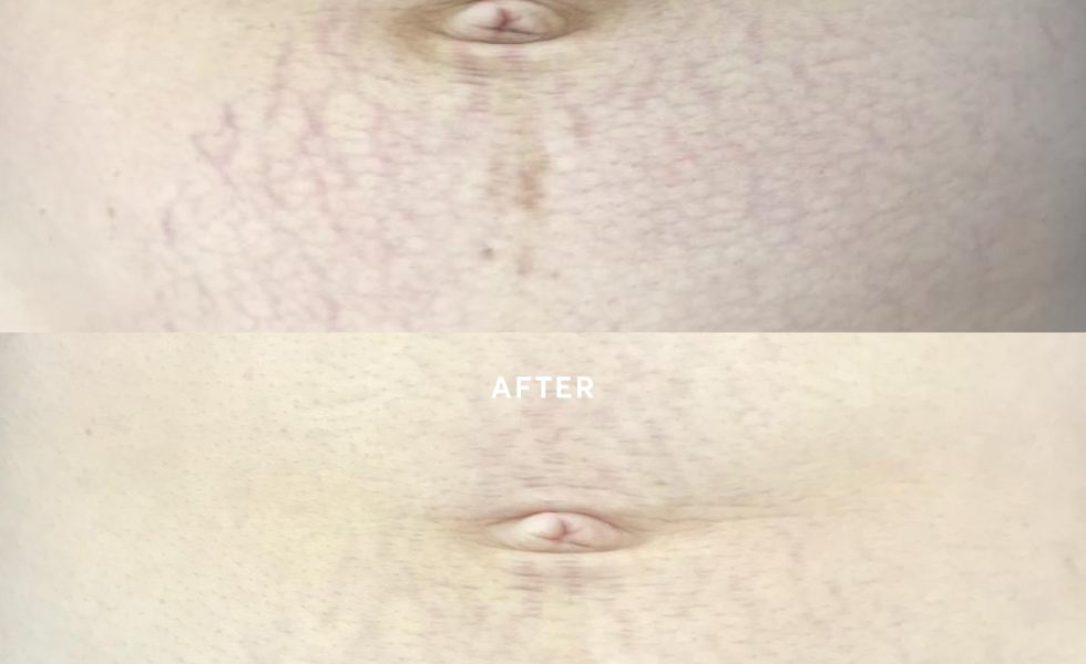 Stretch mark removal on the tummy area