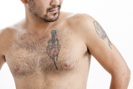 Tattoo Removal Clinic