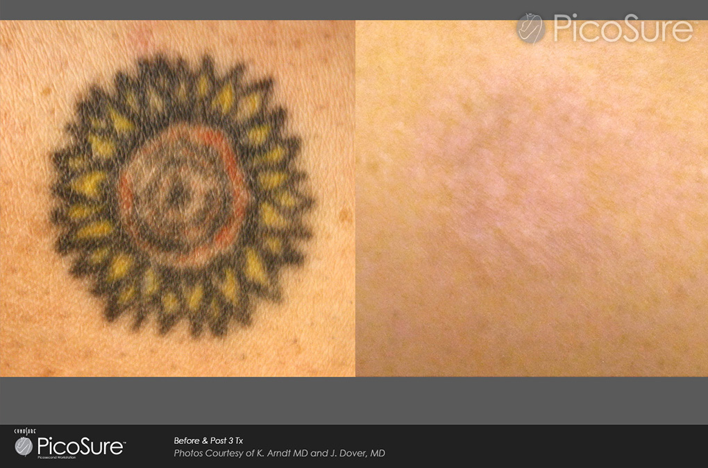 Fastest Tattoo Removal Technology in London