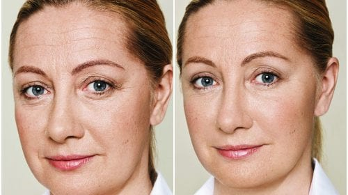 Derma Fillers Before and afters