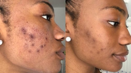 Dermapen acne scar treatment