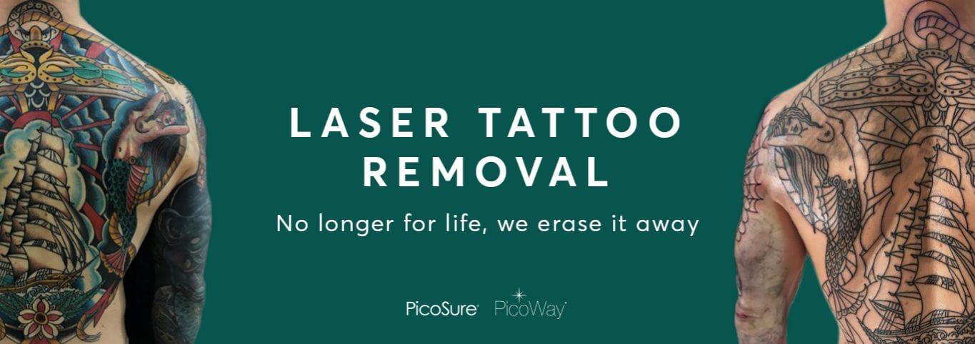 Laser Tattoo Removal Feature Website Graphic