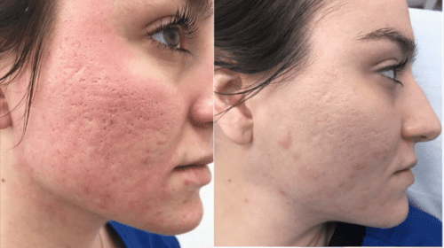 Image result for Laser Acne Treatment