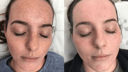 Skin Pigmentation Pulse Light Clinic London