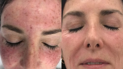 After 1 Freckle Removal PicoSure Treatment
