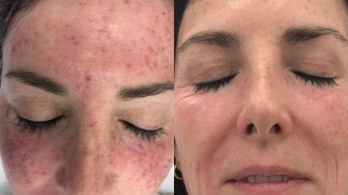 PicoSure Skin Pigmentation for Asian Skin | Pulse Light
