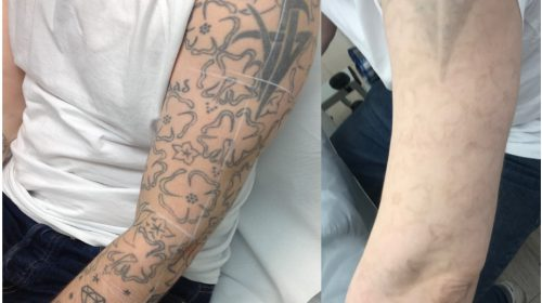 Laser Tattoo Removal London, As seen on BBC London | Pulse