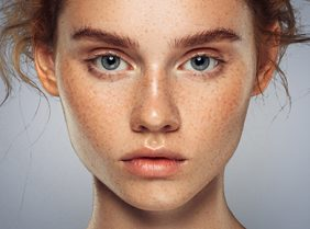 Lady with lots of freckles on her face
