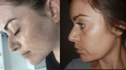 After 2 Freckle Removal PicoSure Treatments