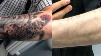 Laser Tattoo Removal Cover Up
