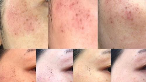 After 4 PicoSure Pigmentation Treatments