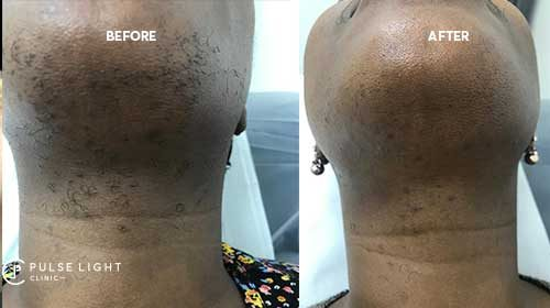 chin laser hair removal london before and after