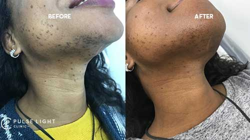 laser hair removal london chin treatment