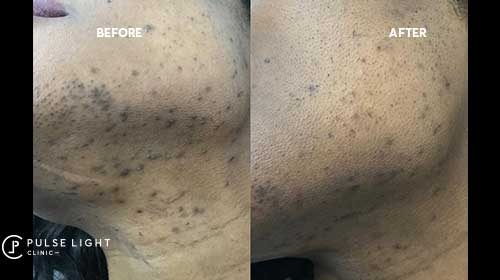 Laser hair removal london before and after