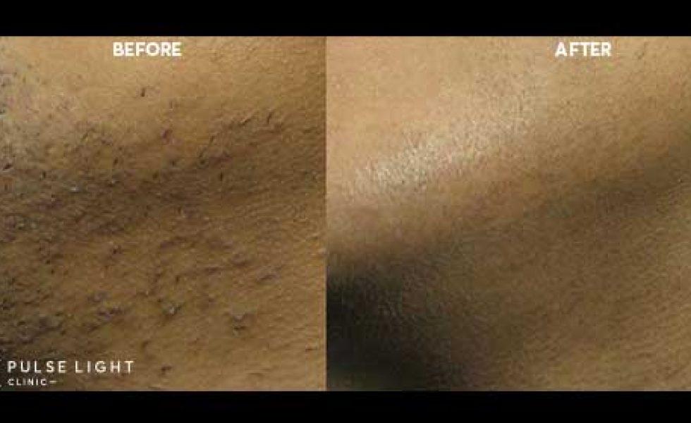 ingrown hair reduction laser hair removal london