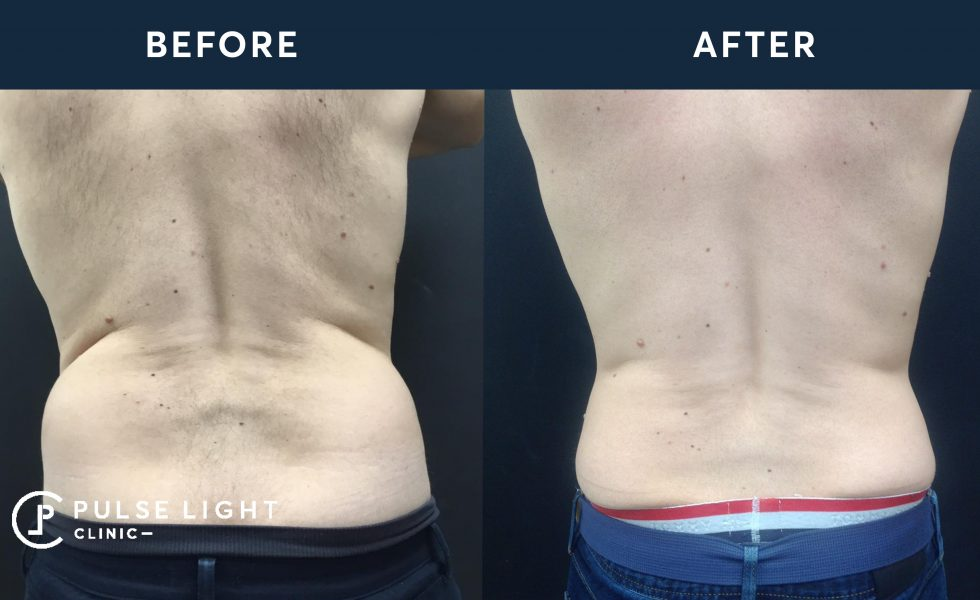 After 1 CoolSculpting treatment, with 4 applicators on flanks