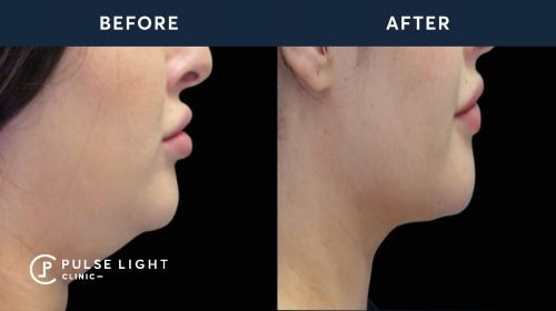 Fat Freezing / CoolSculpting Chin Before and After