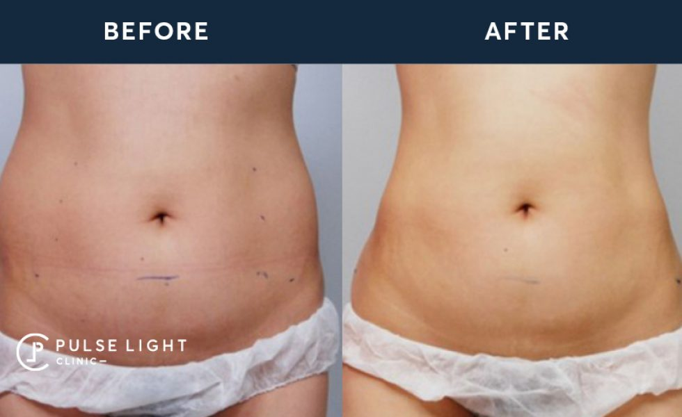 HIFU Stomach Treatment