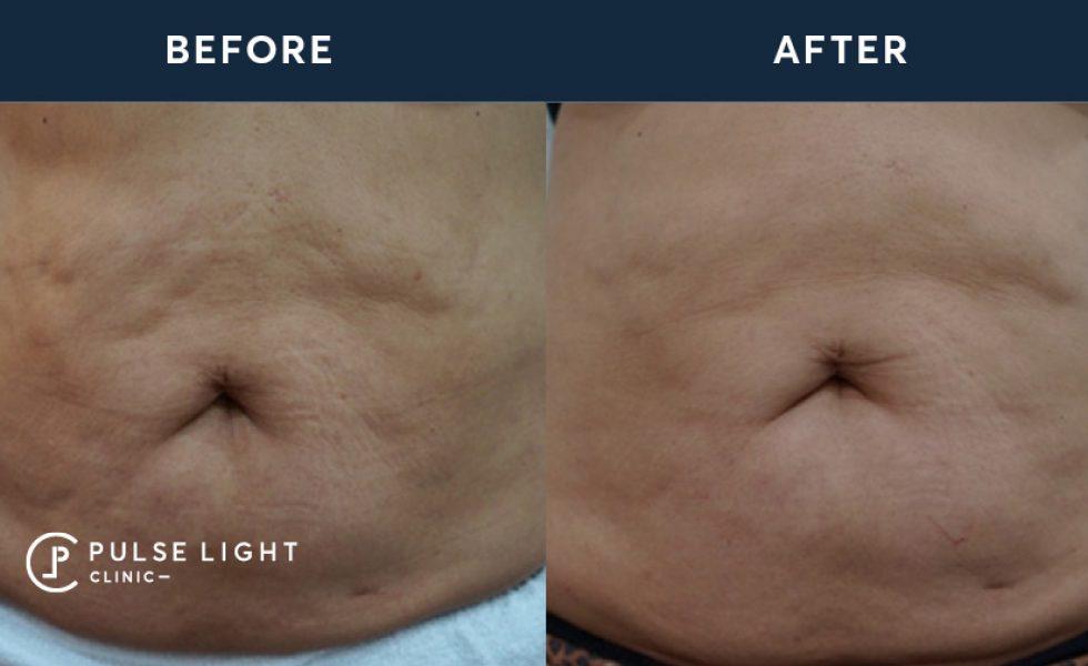 Hifu Skin Tightening | Pulse Light Clinic London
