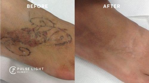Tattoo Removal for Darker Skin London | Pulse Light Clinic