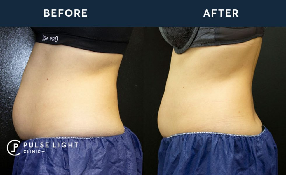 CoolSculpting Before and Afters in Oxford Street