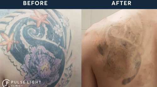 Back before and after - Laser Tattoo Removal