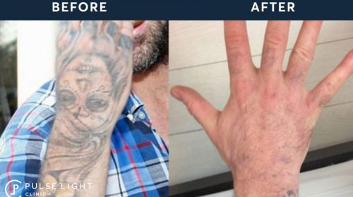 Before and after graphic taken from laser tattoo removal in West London Clinic