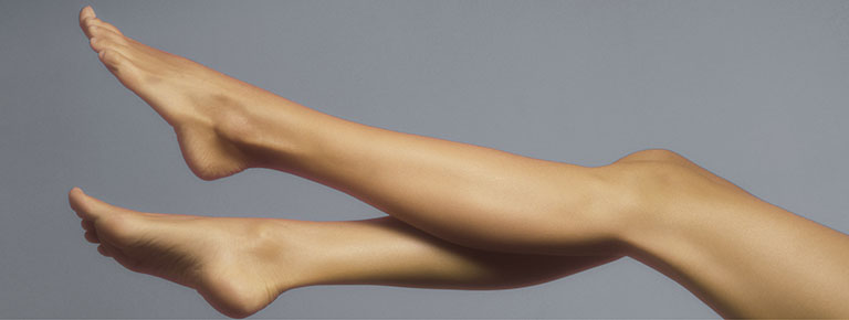 Leg Vein Removal Graphic