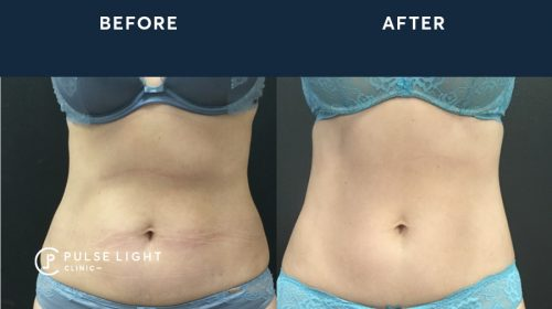 A before and after a lady's abdomen treatment of CoolSculpting