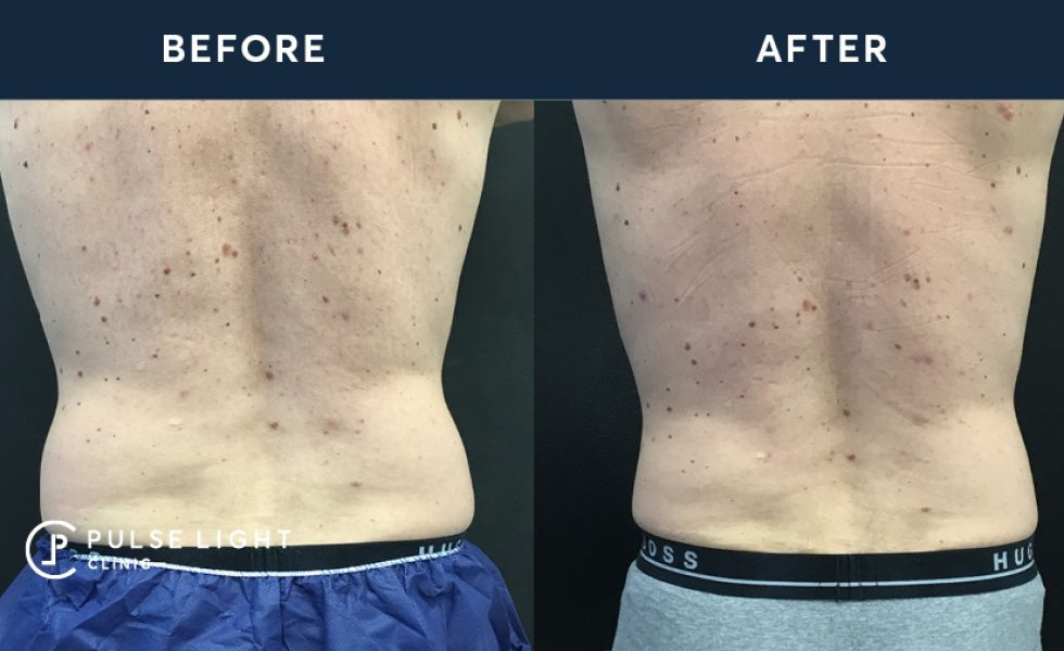 After 1 CoolSculpting treatment, with 2 applicators on flanks
