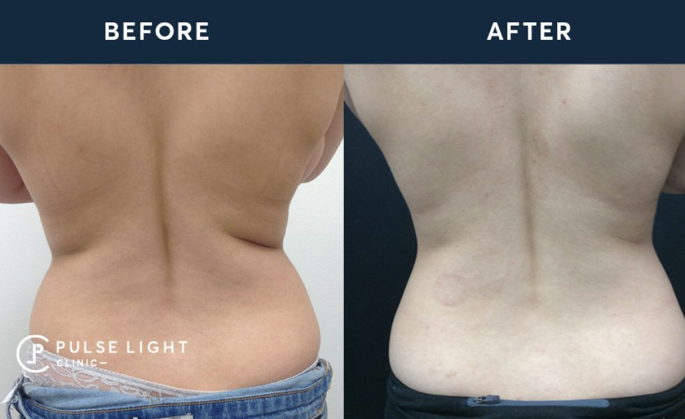 After 2 CoolSculpting treatments, with 4 applicators on back fat