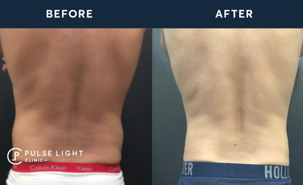 After 2 CoolSculpting treatments, with 4 applicators on flanks