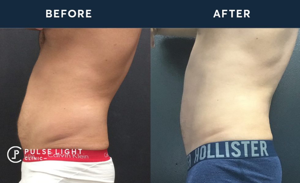 After 2 CoolSculpting / Fat Freezing treatments with 4 applicators on stomach