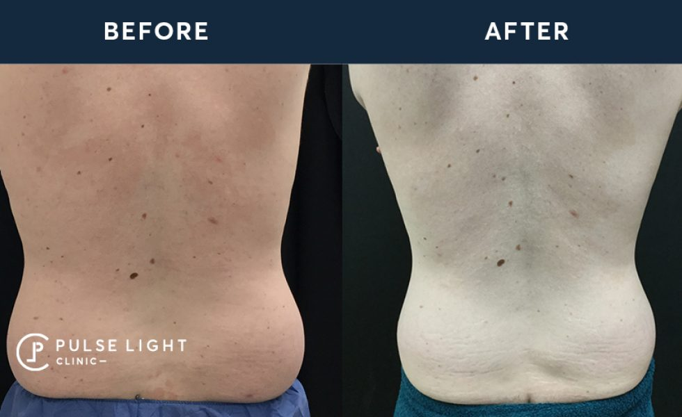 After CoolSculpting Treatments for Back Fat