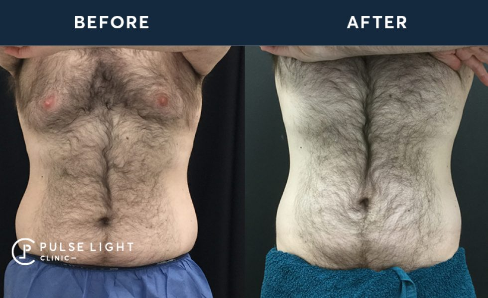 After 1 CoolSculpting treatment, with 4 applicators on flanks.