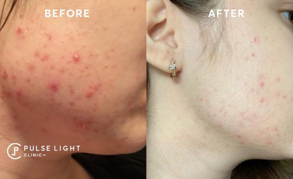 Icon Acne Scar treatments