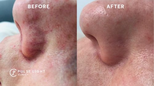 IPL Rosacea Treatment
