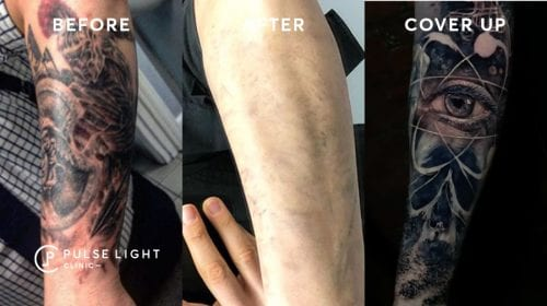 Laser Tattoo Removal Cover Up Process