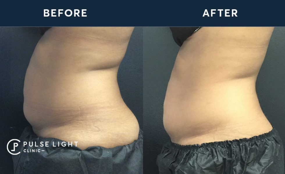 After 1 CoolSculpting / Fat Freezing treatment, with 4 applicators on stomach