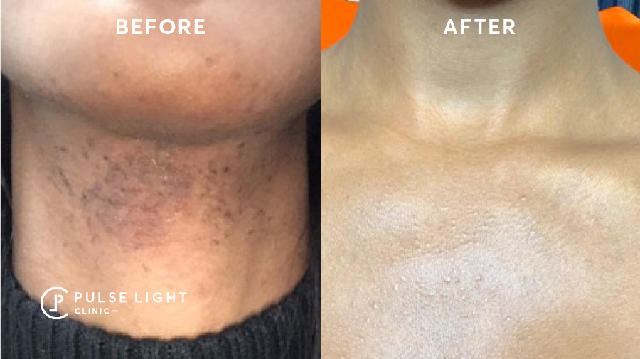 laser hair removal pcos results