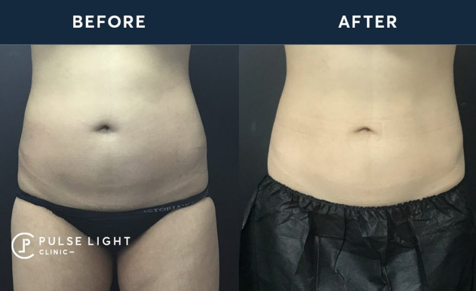 After 1 CoolSculpting / Fat Freezing treatment, with 4 applicators on the stomach
