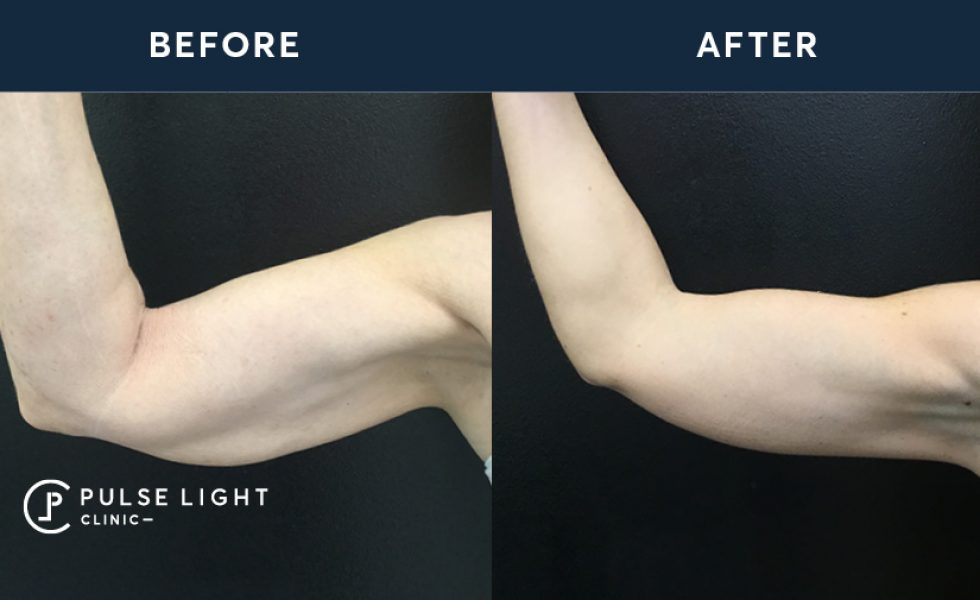 A before and after a CoolSculpting treatment on a lady's arm